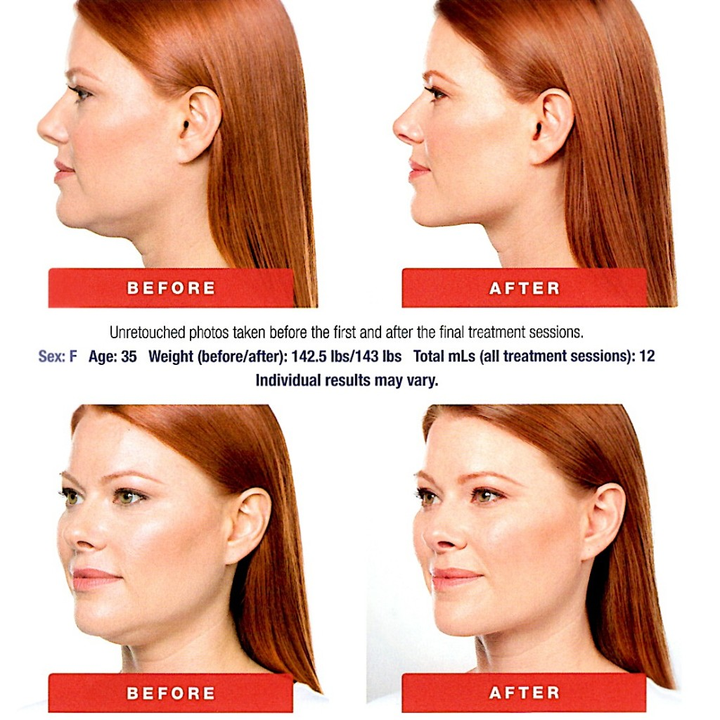 Kybella Charleston neck