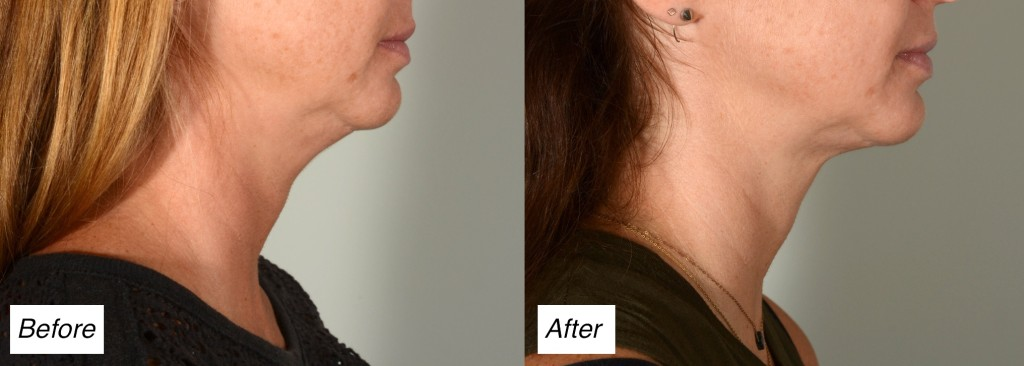 kybella double chin Charleston
