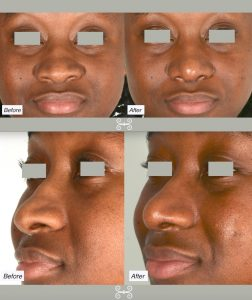 ethnic rhinoplasty in Charleston, sc