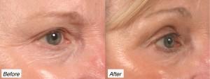 blepharoplasty and eyelid lift charleston, sc