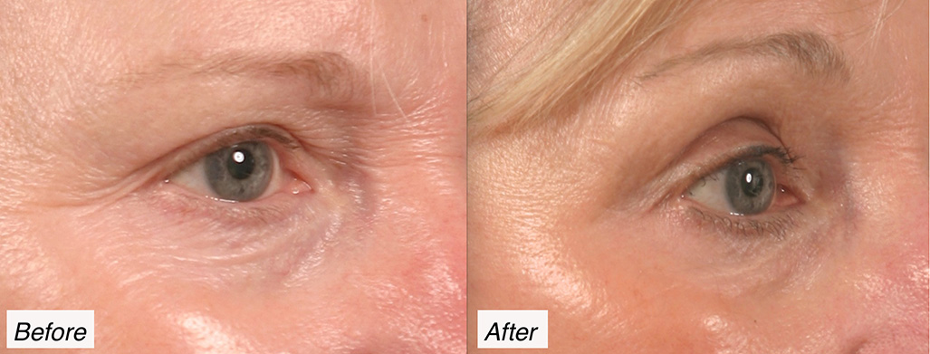 eyelid lift charleston
