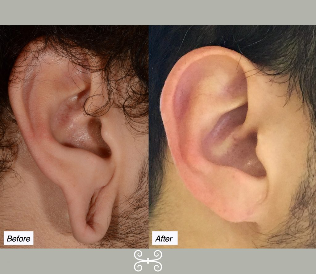ear gauge repair charleston