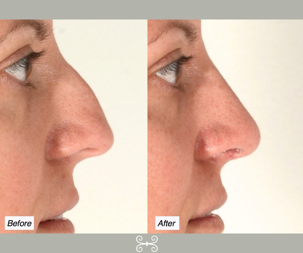 nose job hump reduction
