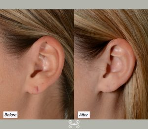 earlobe repair Charleston