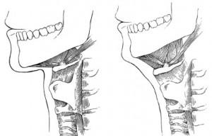 low hyoid neckline