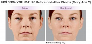 juvederm voluma charleston