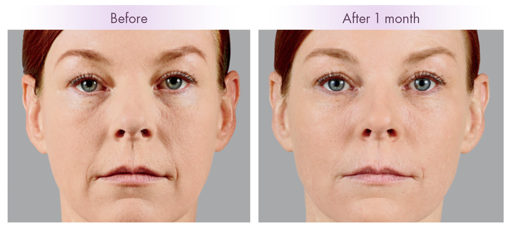 Using Fillers For Cheeks Charleston Facial Plastic Surgery