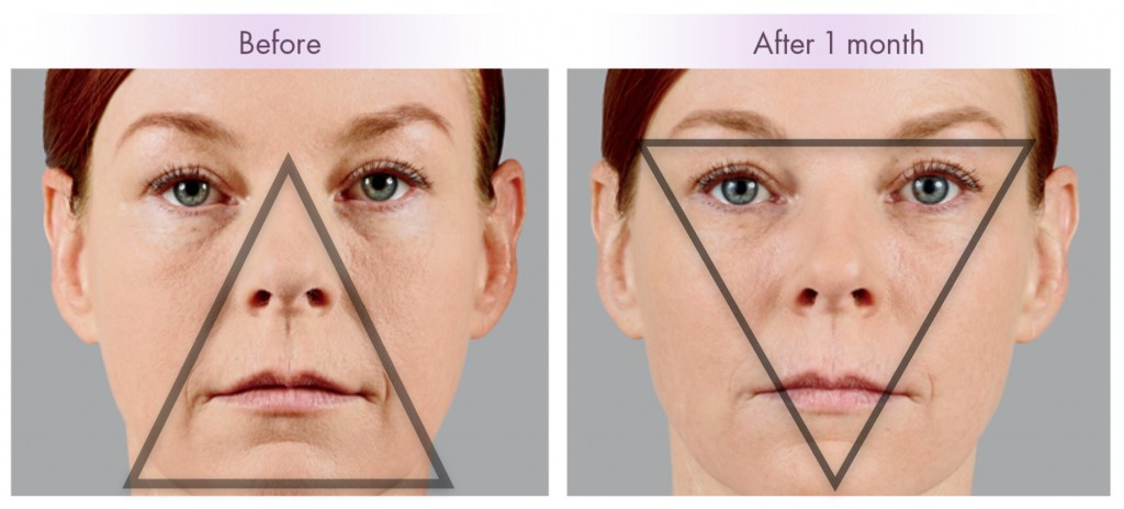Aging brings a heavy look to the lower face. Fillers can turn back the clock and restore volume to the cheeks while also giving a subtle lift.