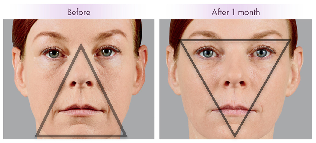 Aging brings a heavy look to the lower face. Fillers can turn back the clock and restore volume to the cheeks.
