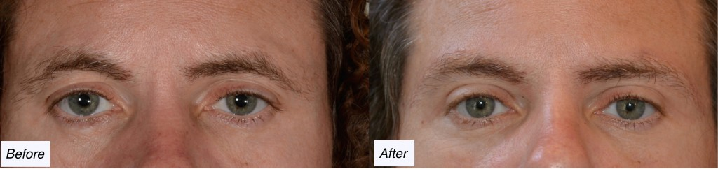 charleston eyelid lift, browlift