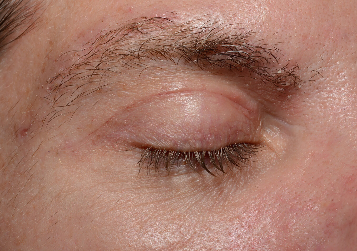 Healing upper eyelid incision at only 8 days after surgery