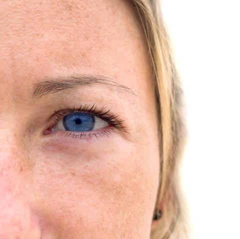 eyelid surgery charleston
