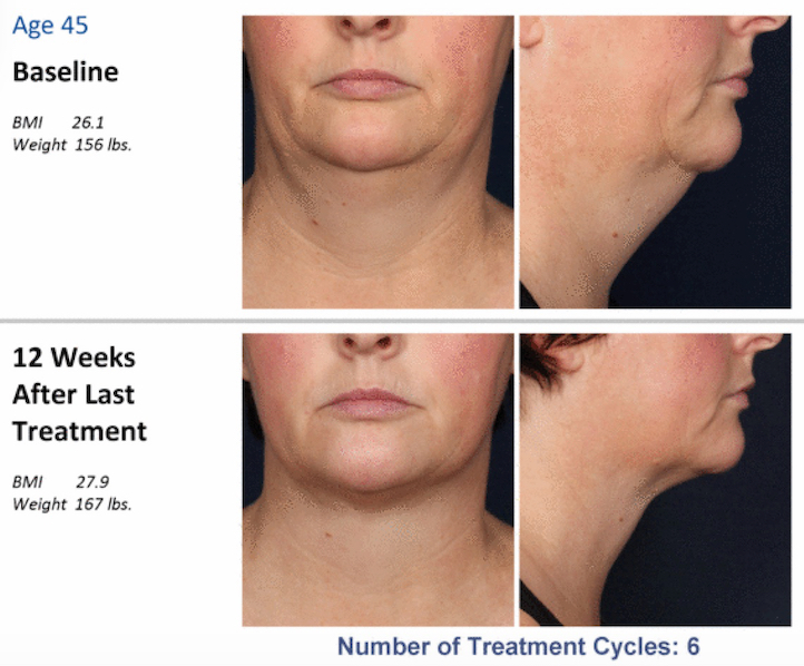 kybella weight gain