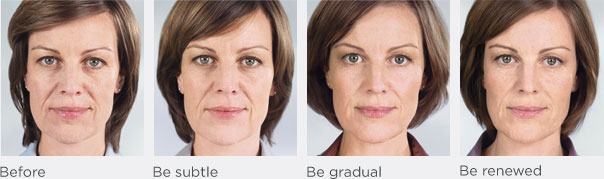 Sculptra in Charleston, SC