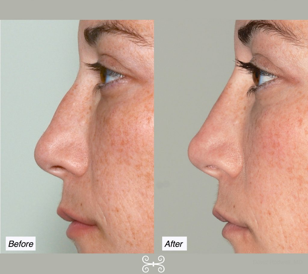 Non-Surgical Nose Job, Charleston - Nose Reshaping Without Surgery