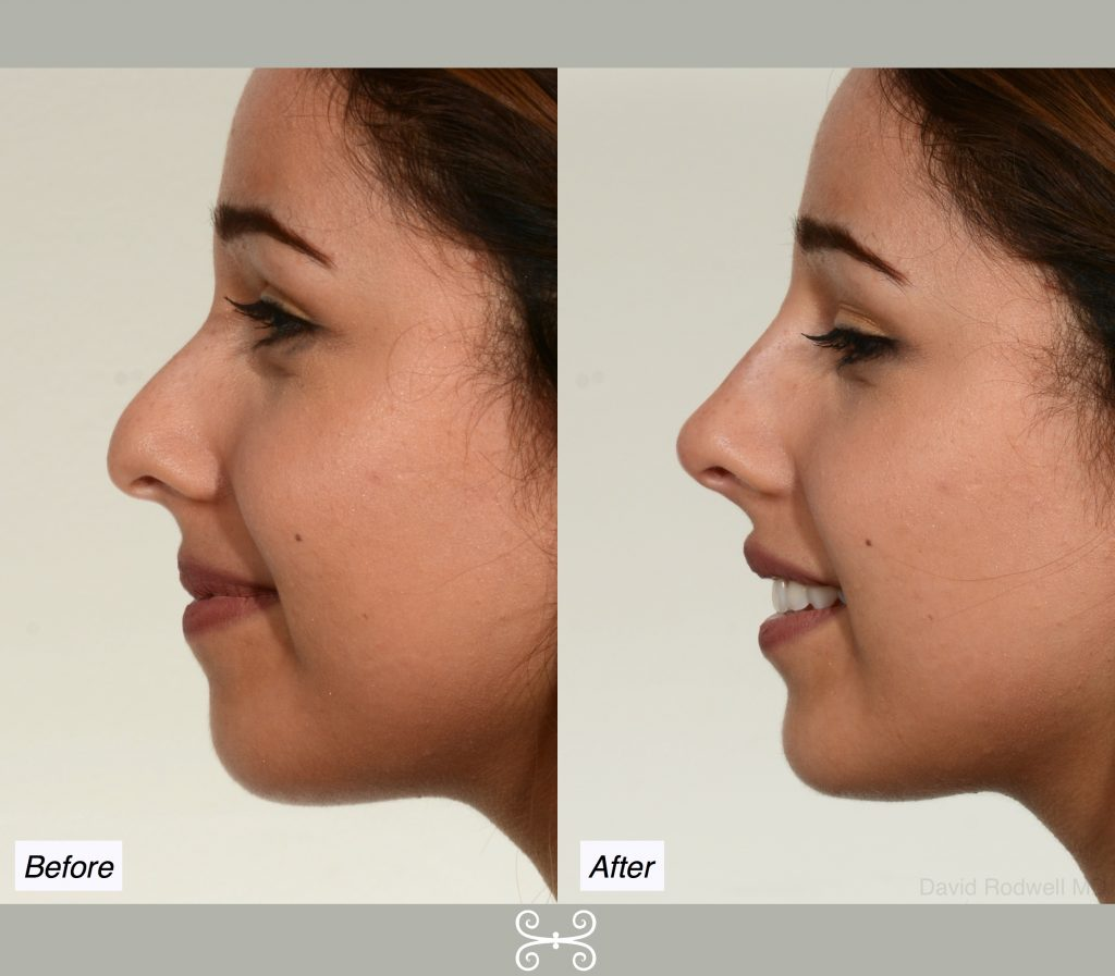 Charleston SC non-surgical nose job