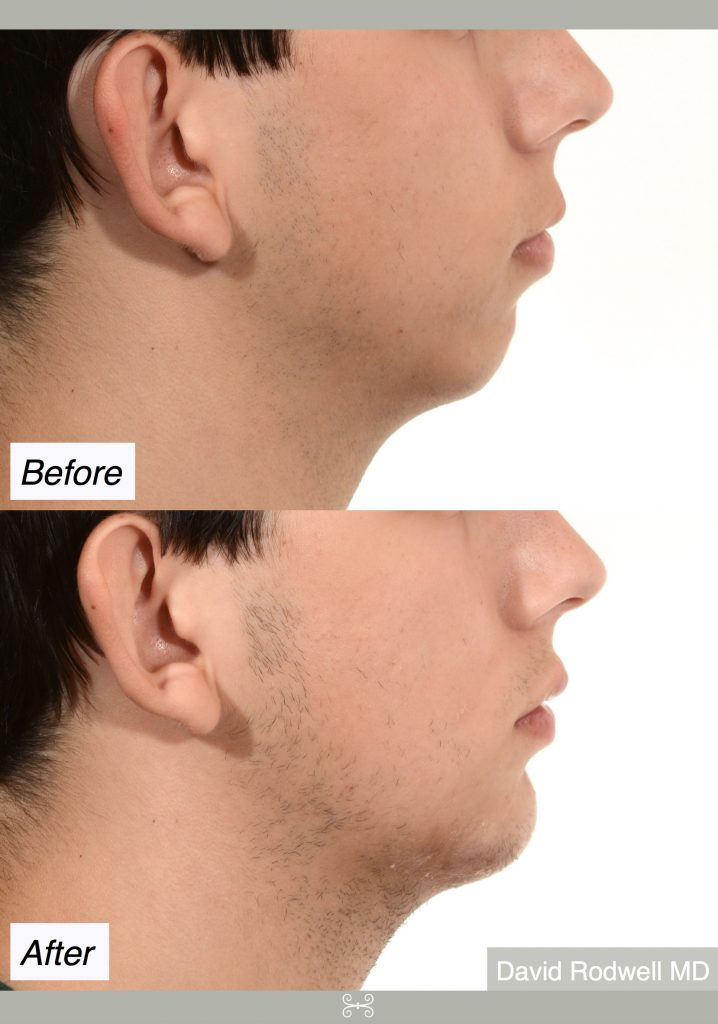 chin implant mt pleasant