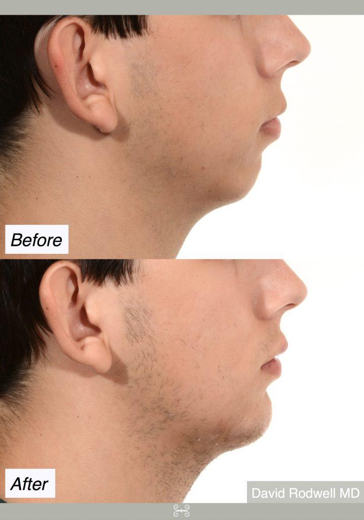 chin implant mt pleasant