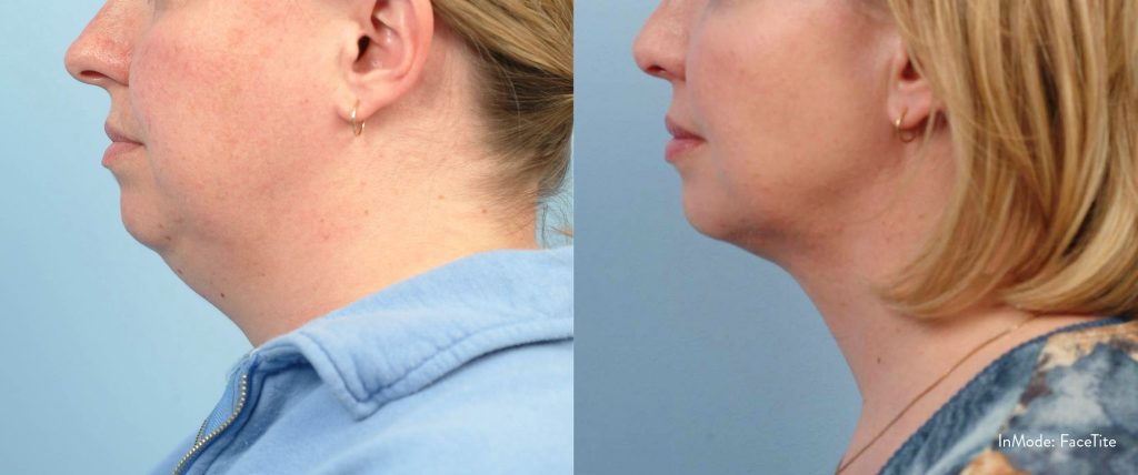 FaceTite Charleston | Non-Surgical Skin Tightening | Dr